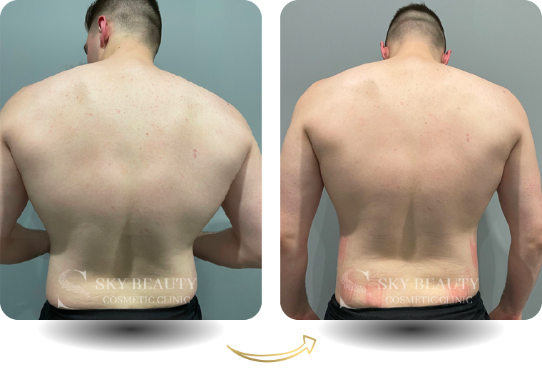 evolve body contouring before after