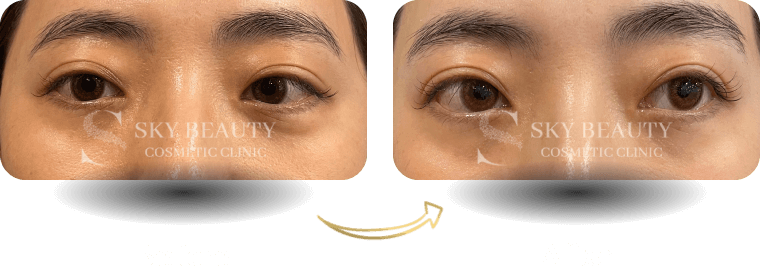 eyebag removal before after