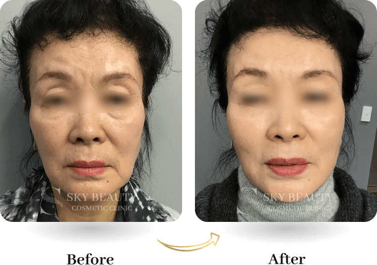 thread lift before after