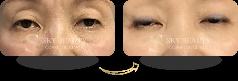 Fotona 4D Pro Eye Treatment