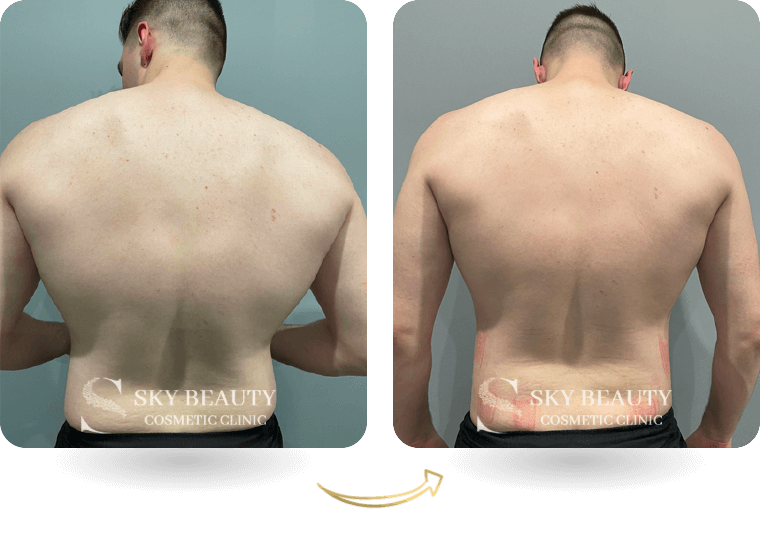 evolve body contouring