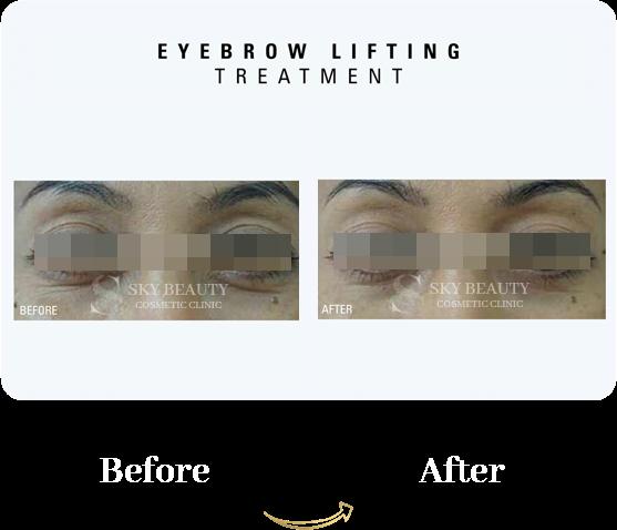 eyebrow lifting treatment hifu