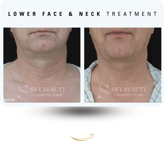 lower face and neck treatment before after