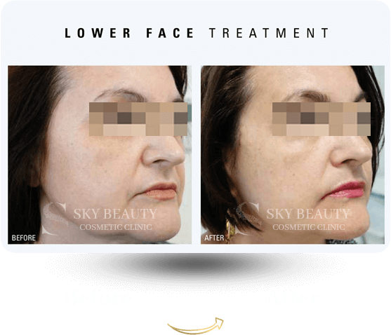 lower face treatment before after