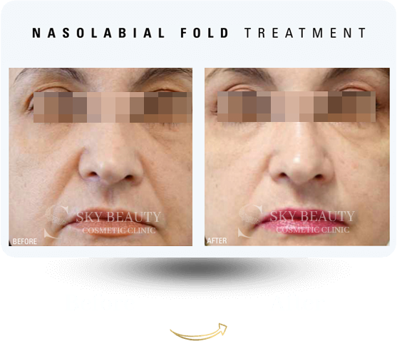 nasolabial fold treatment