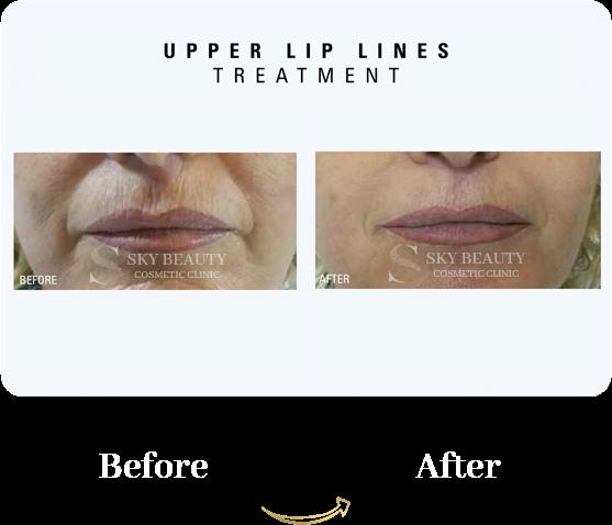 upper lift lines treatment